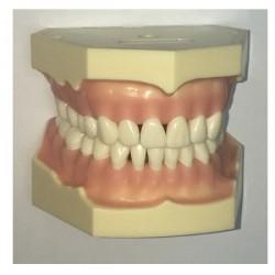 Tipodonto de adulto tipo AG-3, 32 dientes
